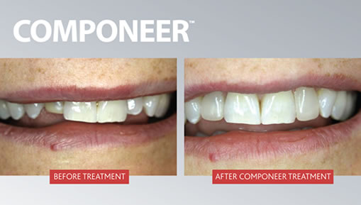 Before and after Componeer Treatment